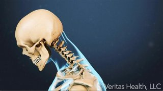 Neck Strain and Poor Posture